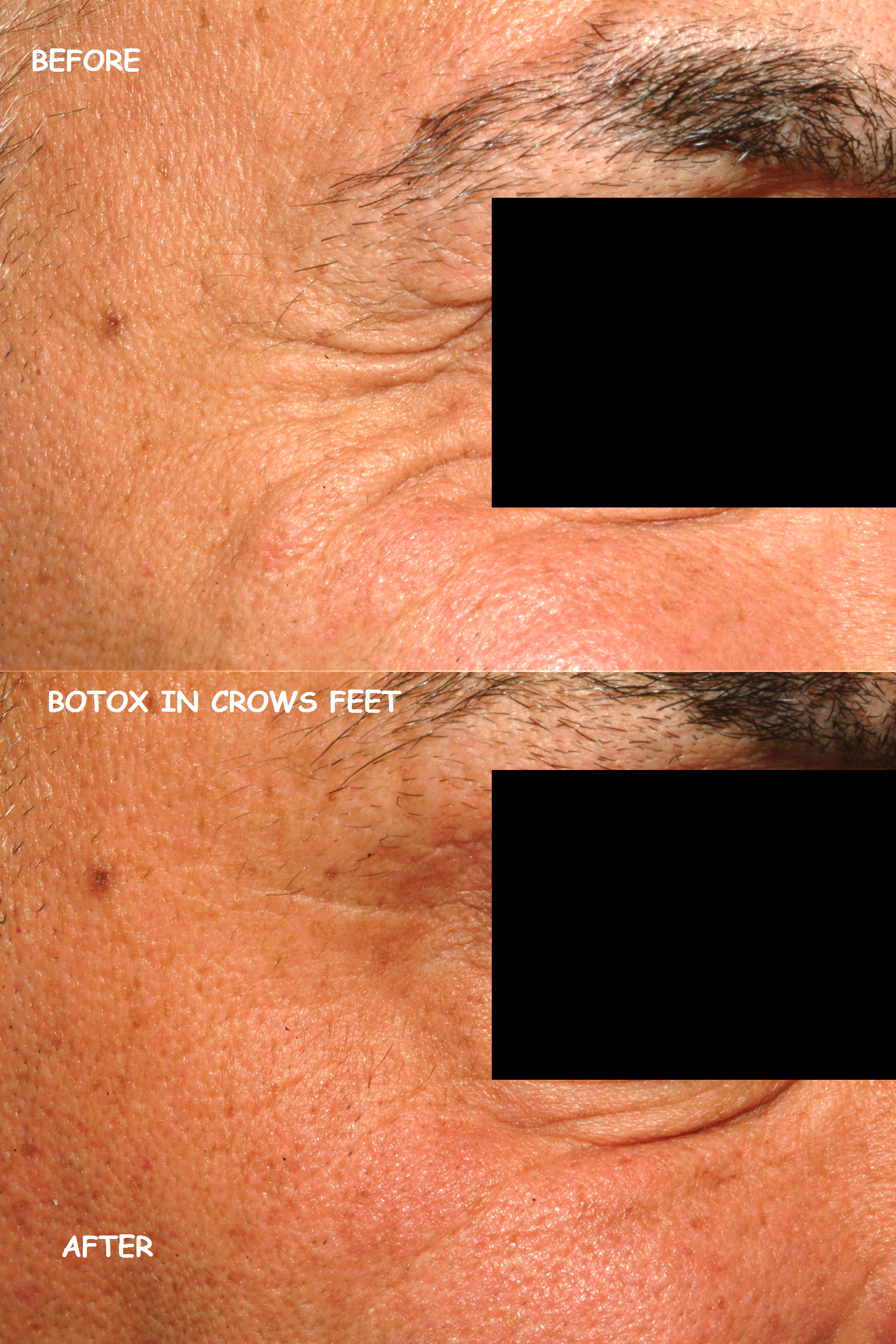 Botox19 crows feet